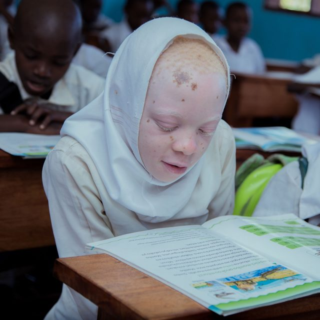 Habsa didn't let albinism keep her out of the classroom